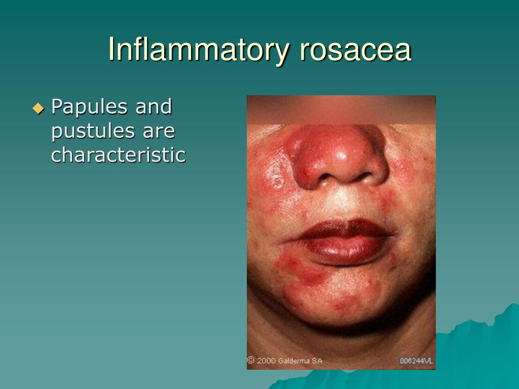 Papules and pustules are characteristic