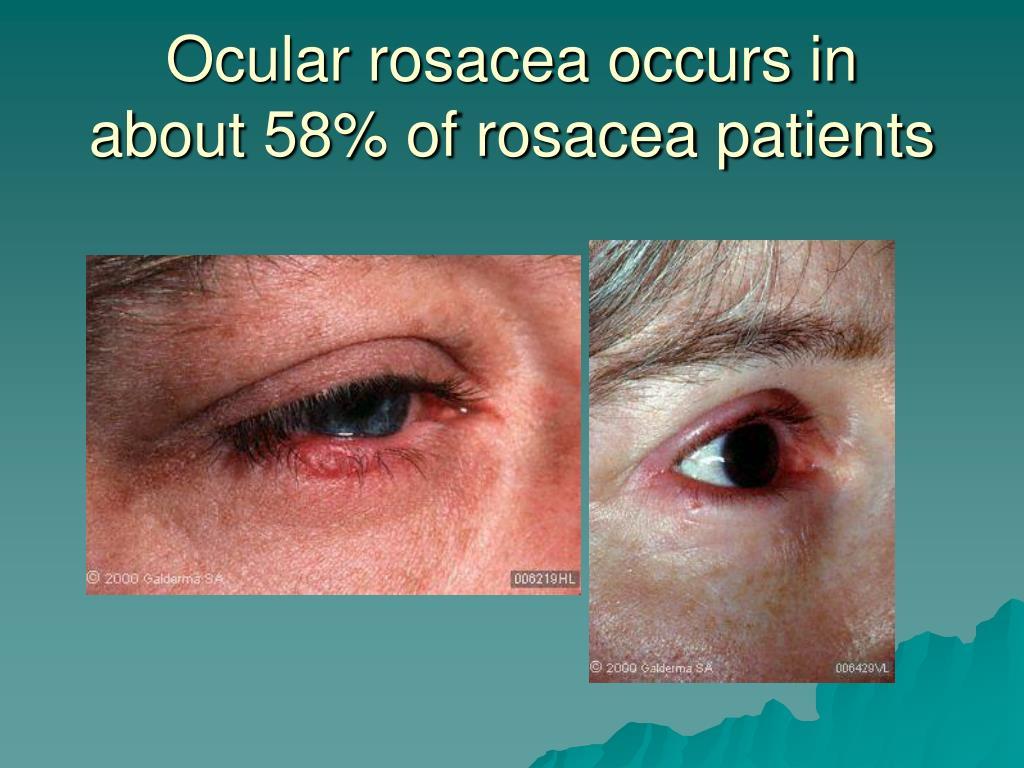 Ocular rosacea occurs in