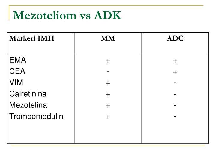Mezoteliom vs ADK
