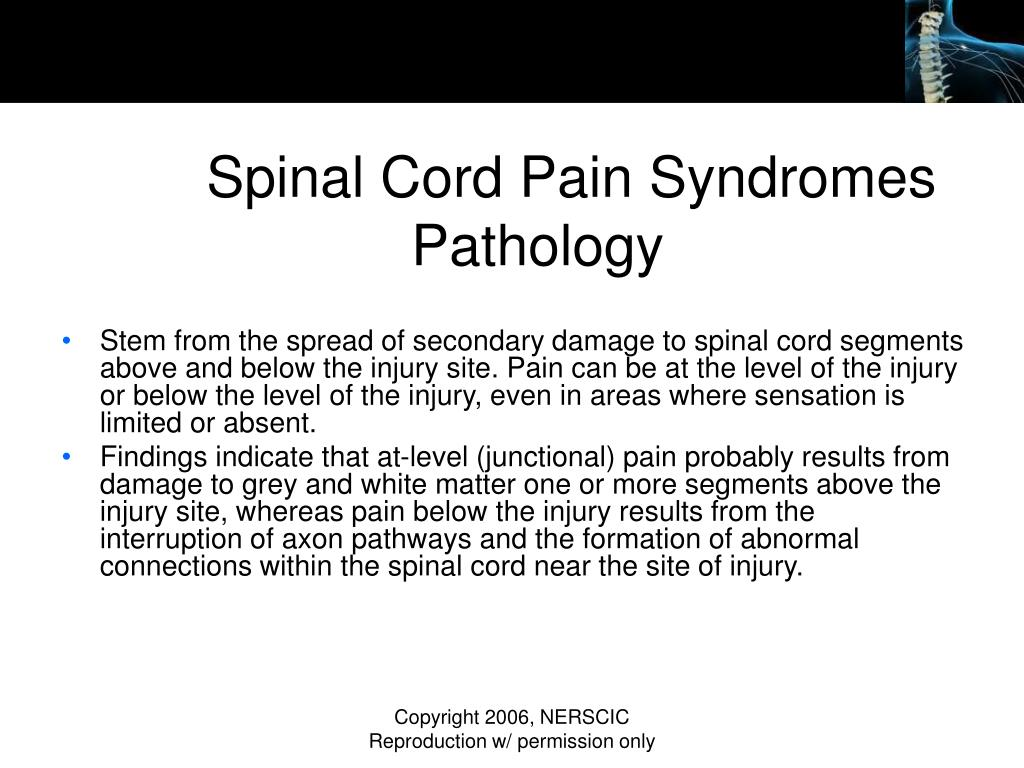 Spinal Cord Pain Syndromes