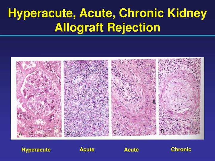 Hyperacute, Acute, Chronic Kidney Allograft Rejection