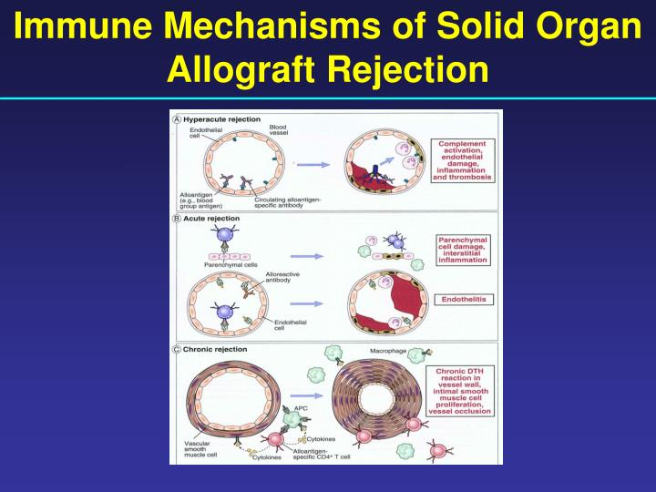 Immune Mechanisms of Solid Organ Allograft Rejection