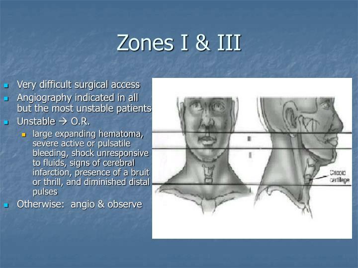 Zones I & III