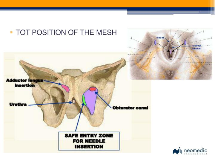 TOT POSITION OF THE MESH