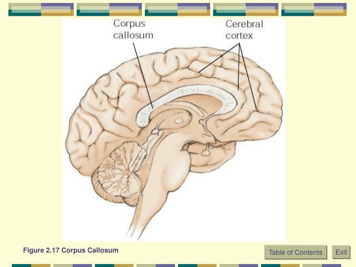 Figure 2.17 Corpus Callosum