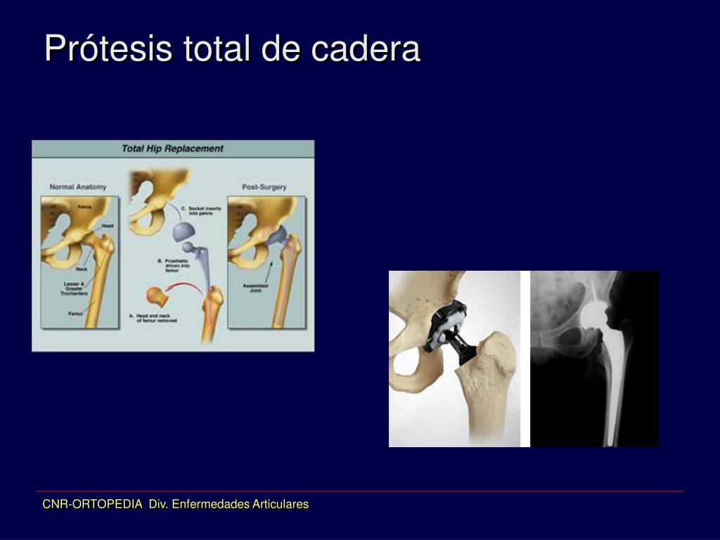 Prótesis total de cadera