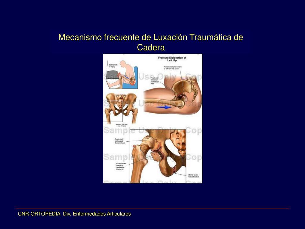 Mecanismo frecuente de Luxación Traumática de Cadera