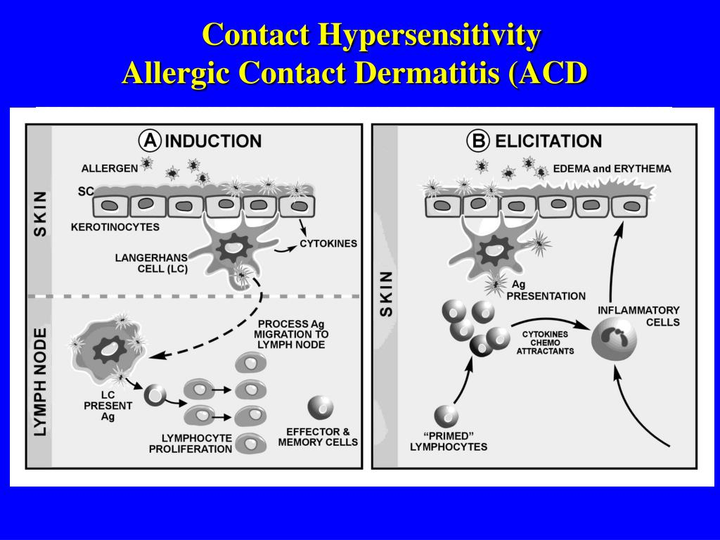 Contact Hypersensitivity