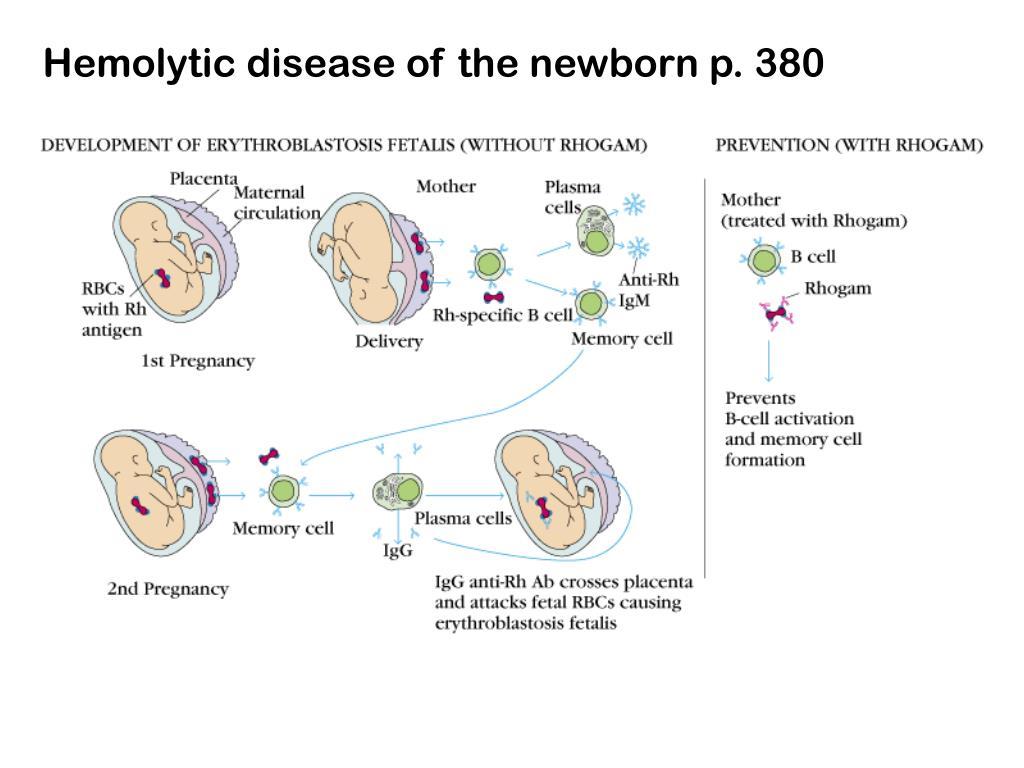Hemolytic disease of the newborn p. 380