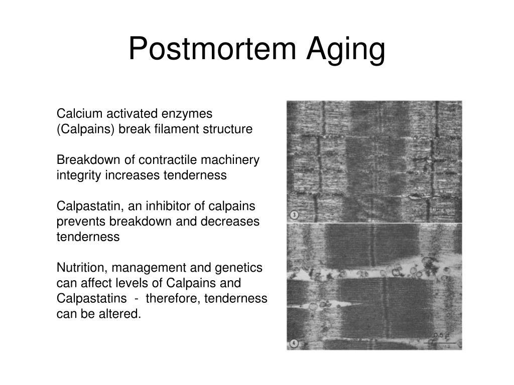 Postmortem Aging