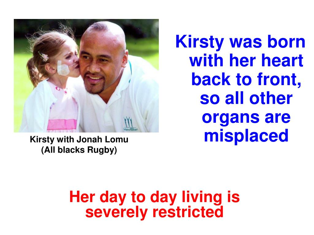 Kirsty was born with her heart back to front, so all other organs are misplaced