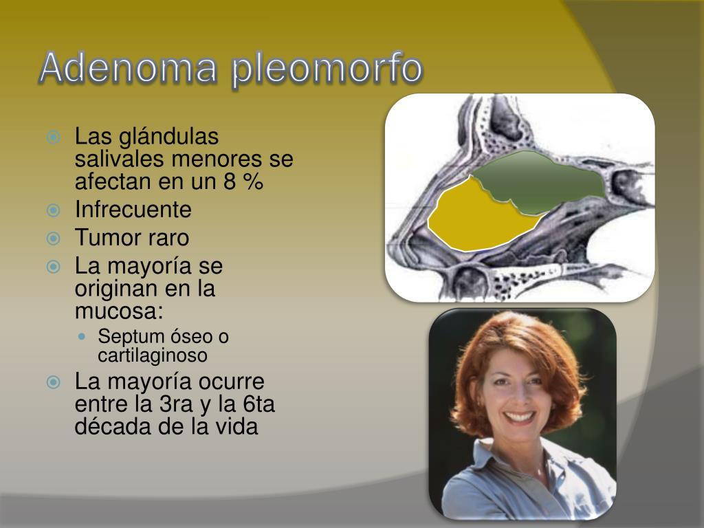 Adenoma pleomorfo