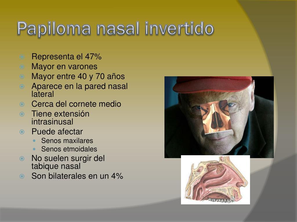 Papiloma nasal invertido