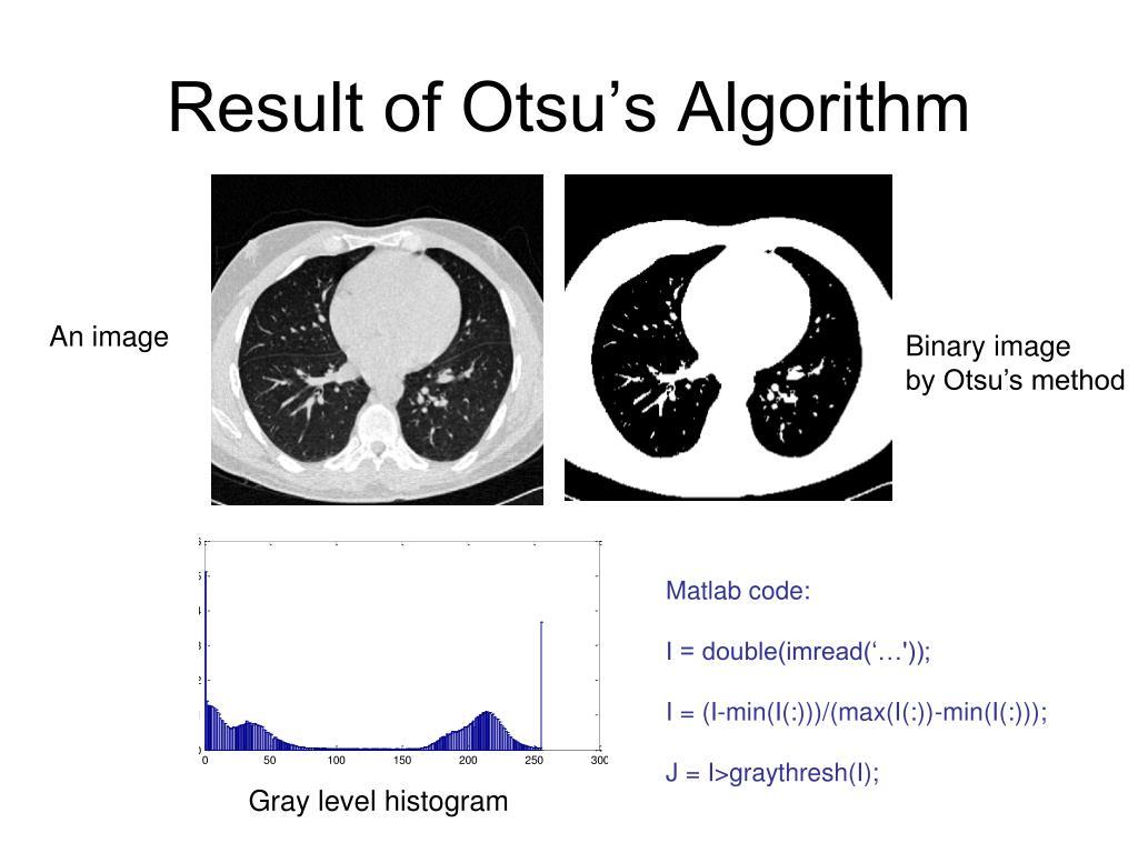 Result of Otsu's Algorithm
