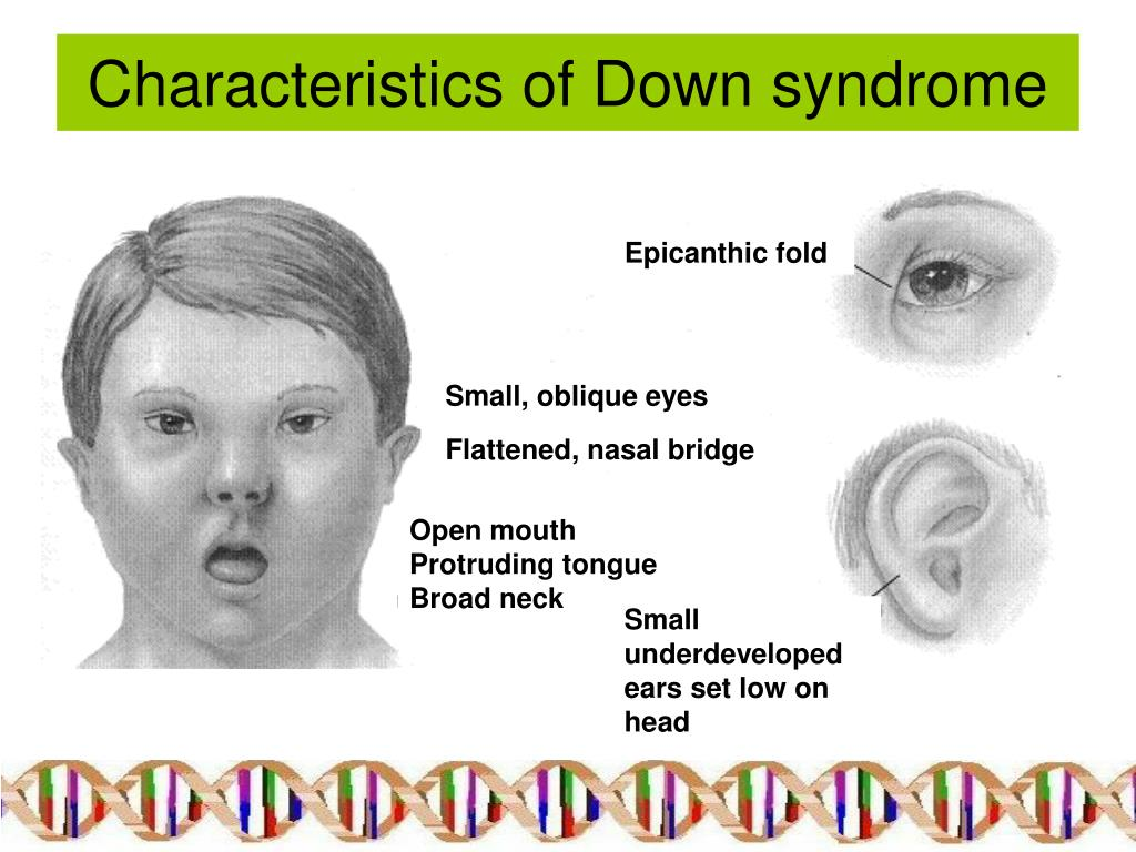 http://image.slideserve.com/151187/characteristics-of-down-syndrome-l.jpg