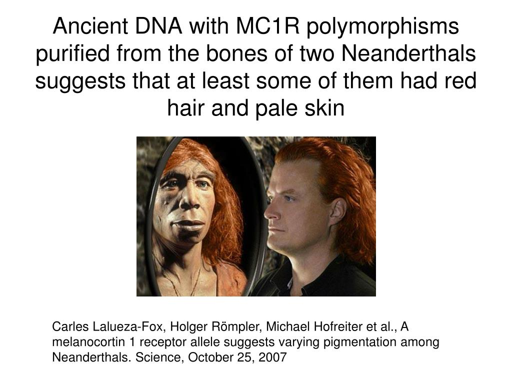 Ancient DNA with MC1R polymorphisms purified from the bones of two Neanderthals suggests that at least some of them had red hair and pale skin