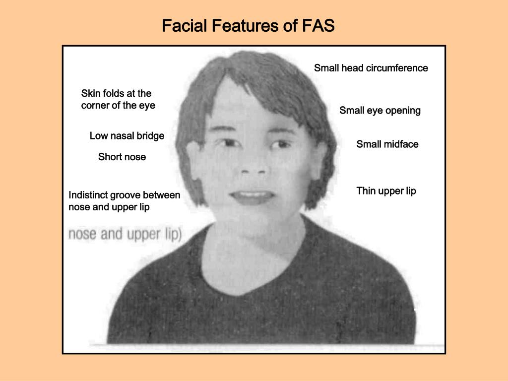 Facial Features of FAS
