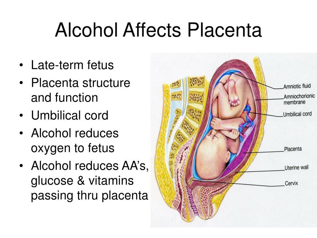 Late-term fetus