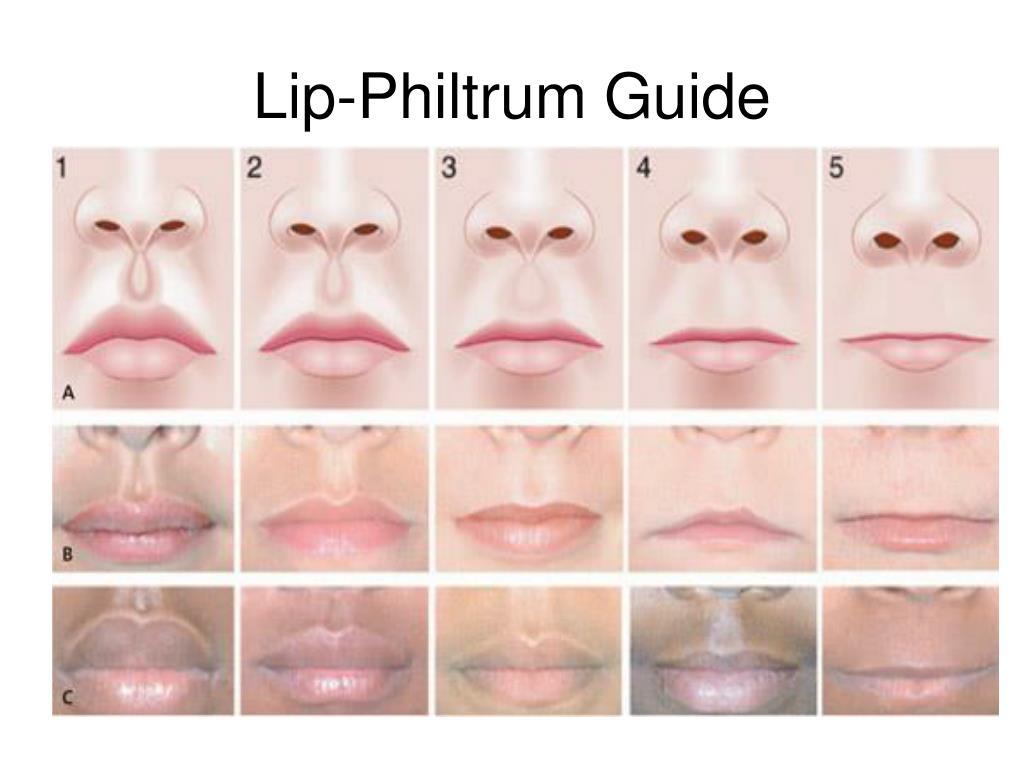 Lip-Philtrum Guide
