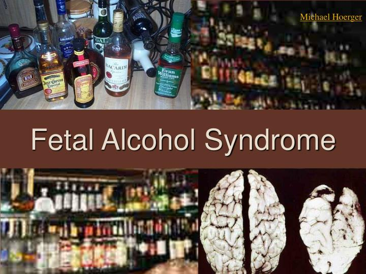 Fetal alcohol syndrome l.jpg