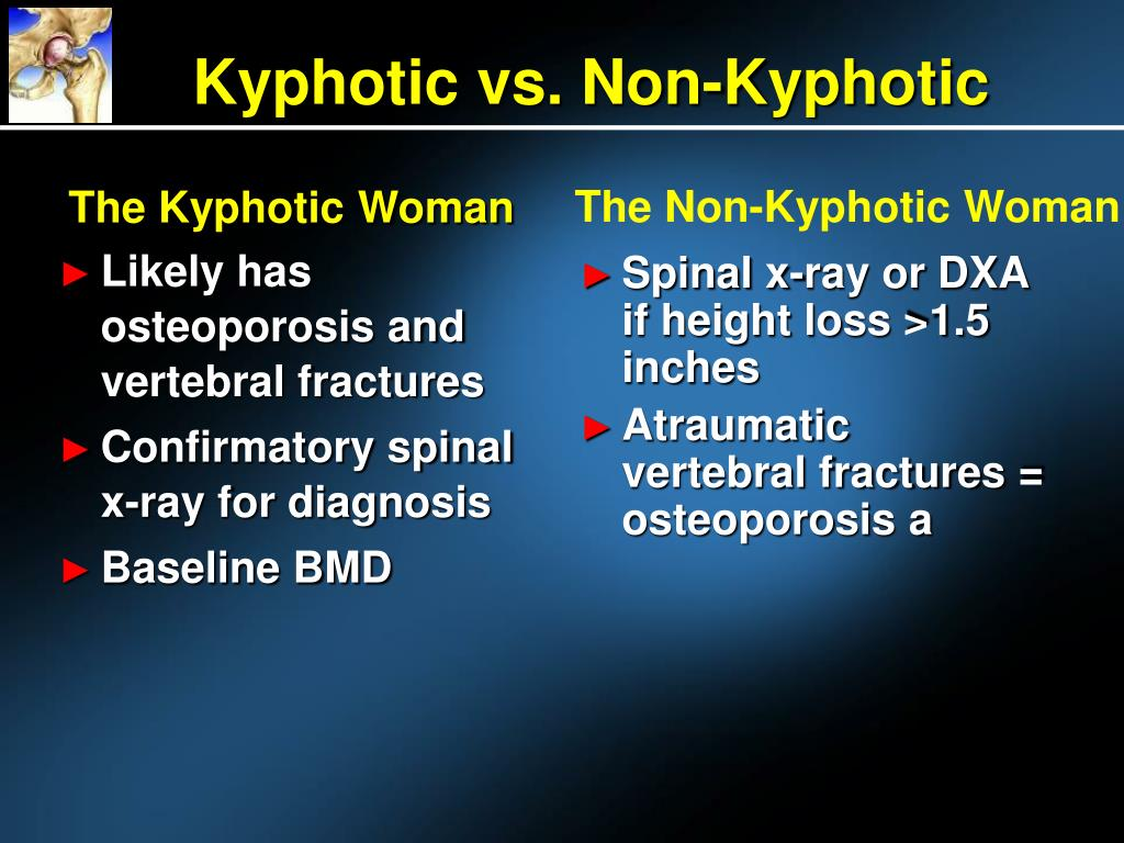 The Kyphotic Woman