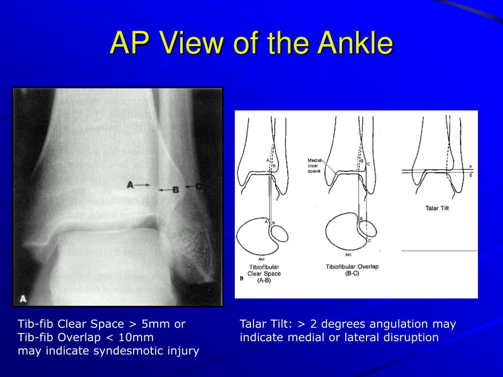 AP View of the Ankle