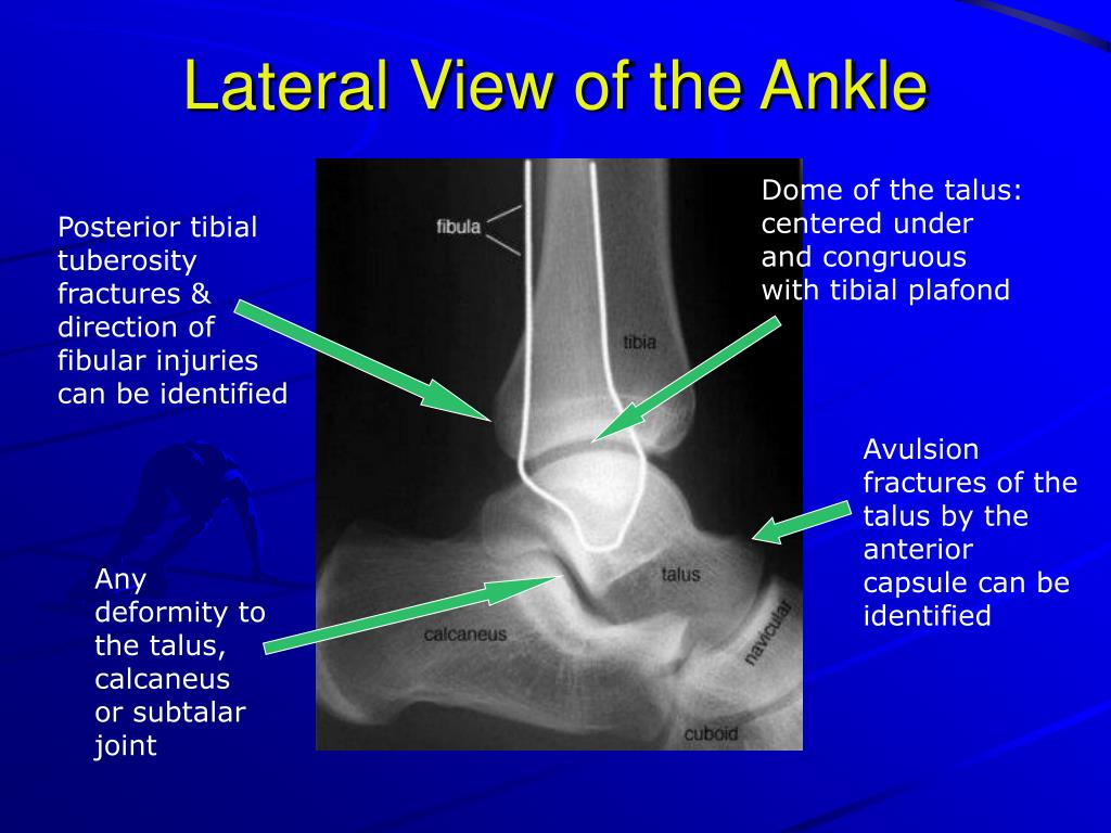 Lateral View of the Ankle