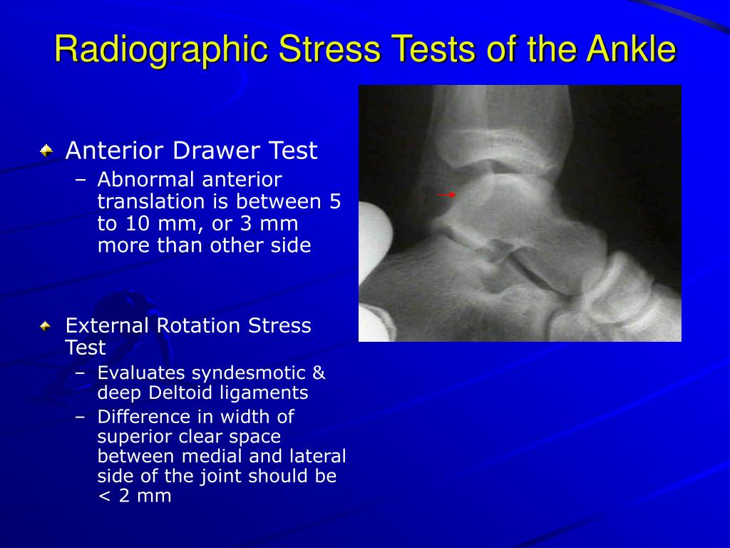Radiographic Stress Tests of the Ankle