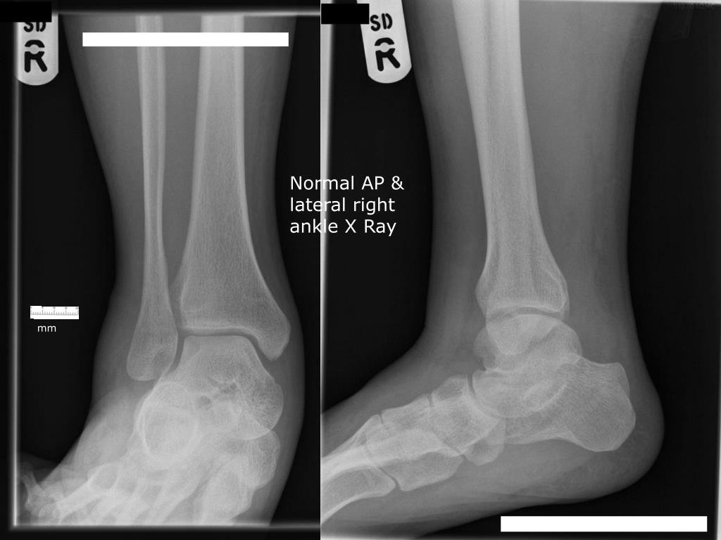 Normal AP & lateral right ankle X Ray