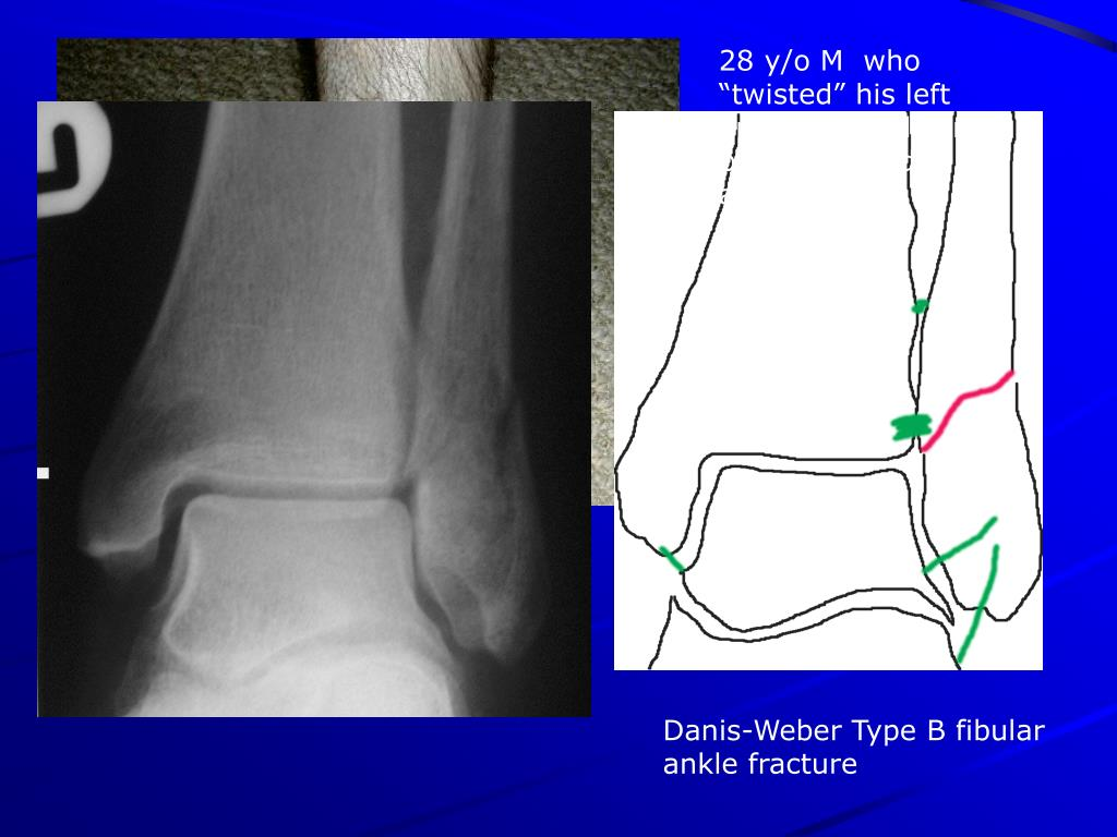 "28 y/o M  who ""twisted"" his left ankle while playing basketball 1 day ago"