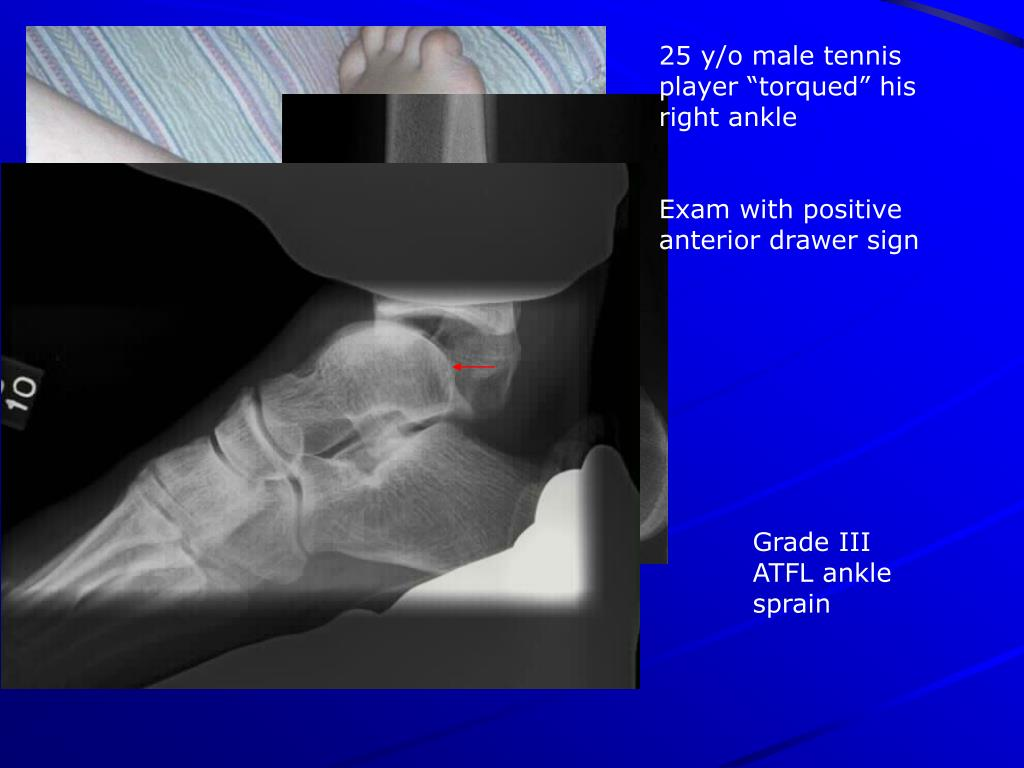 "25 y/o male tennis player ""torqued"" his right ankle"