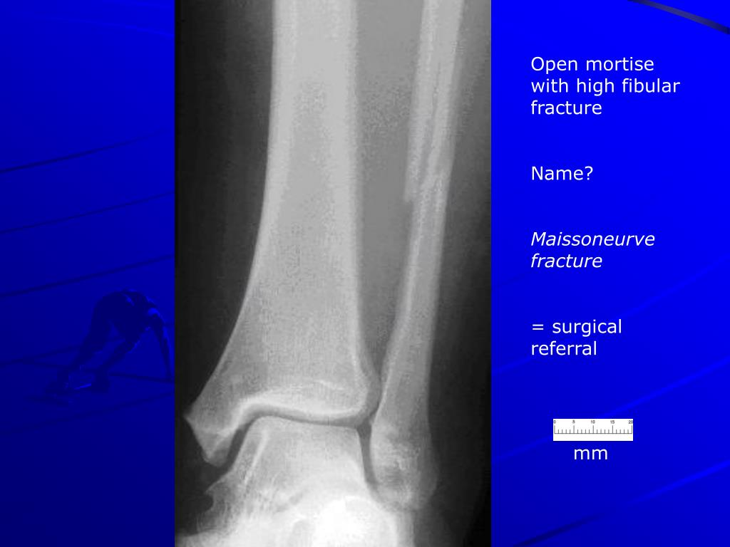 Open mortise with high fibular fracture