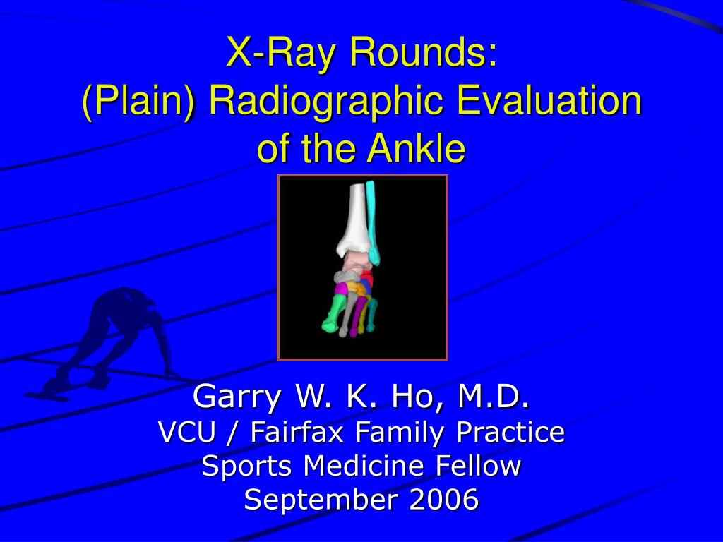 X-Ray Rounds: