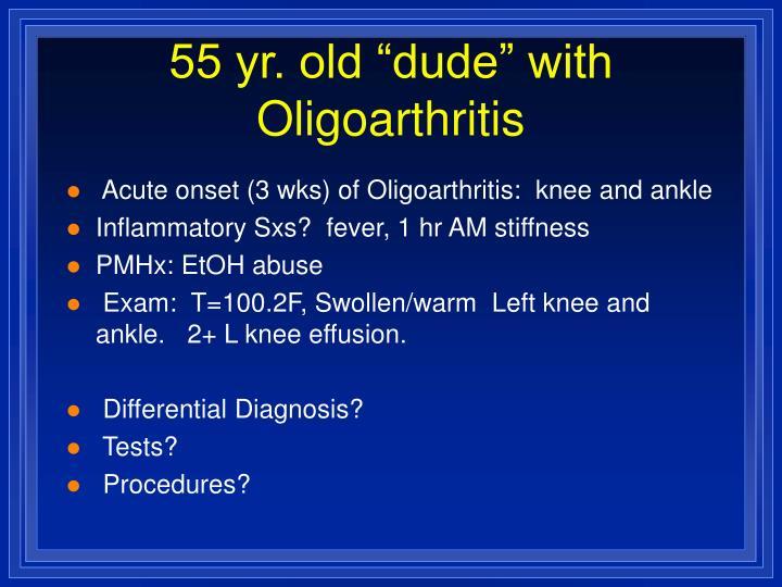 """55 yr. old """"dude"""" with Oligoarthritis"""
