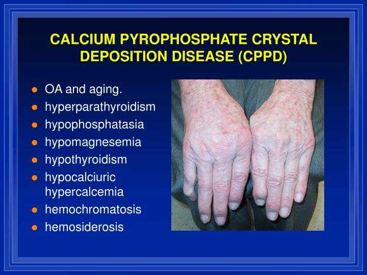 CALCIUM PYROPHOSPHATE CRYSTAL DEPOSITION DISEASE (CPPD)