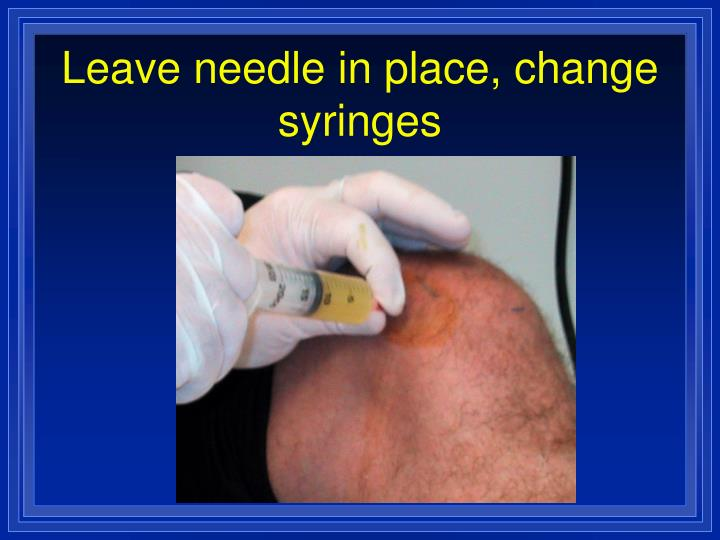 Leave needle in place, change syringes