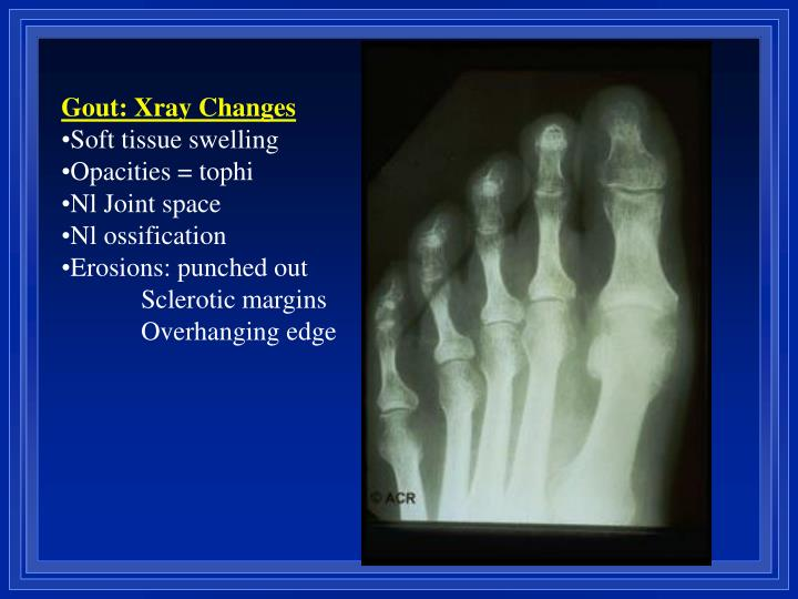 Gout: Xray Changes
