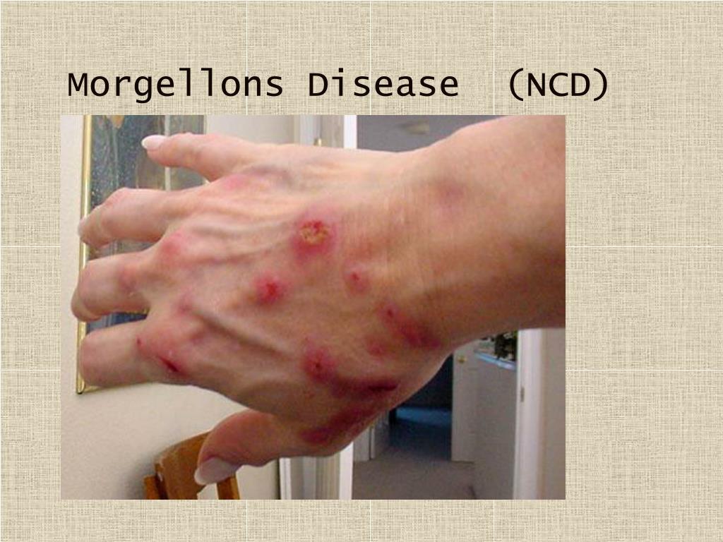 Morgellons Disease  (NCD)