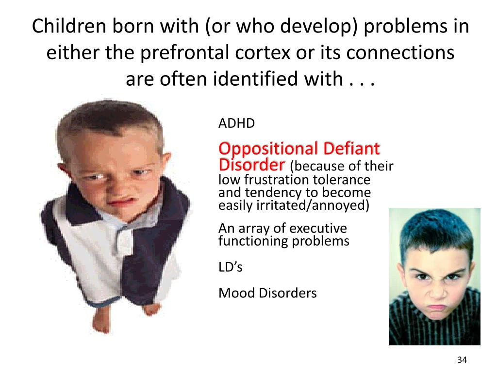 Children born with (or who develop) problems in either the prefrontal cortex or its connections are often identified with . . .