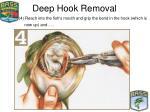 deep hook removal22