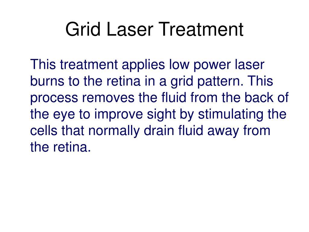 Grid Laser Treatment