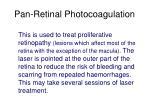 pan retinal photocoagulation