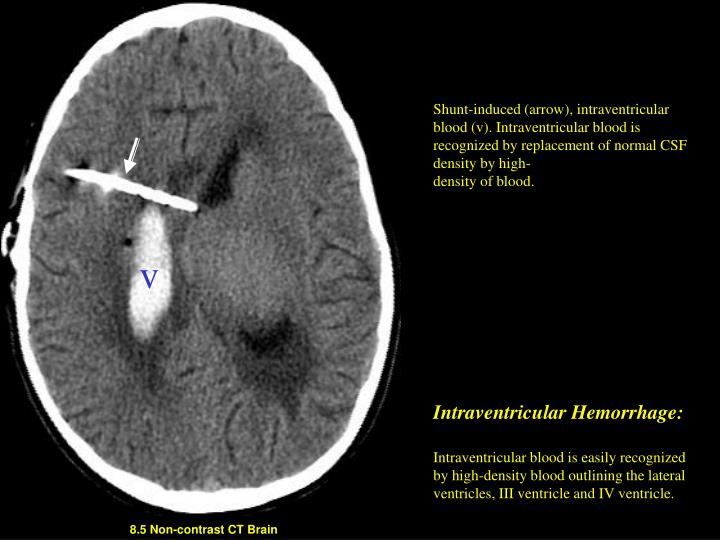 Shunt-induced (arrow), intraventricular blood (v). Intraventricular blood is recognized by replacement of normal CSF density by high-