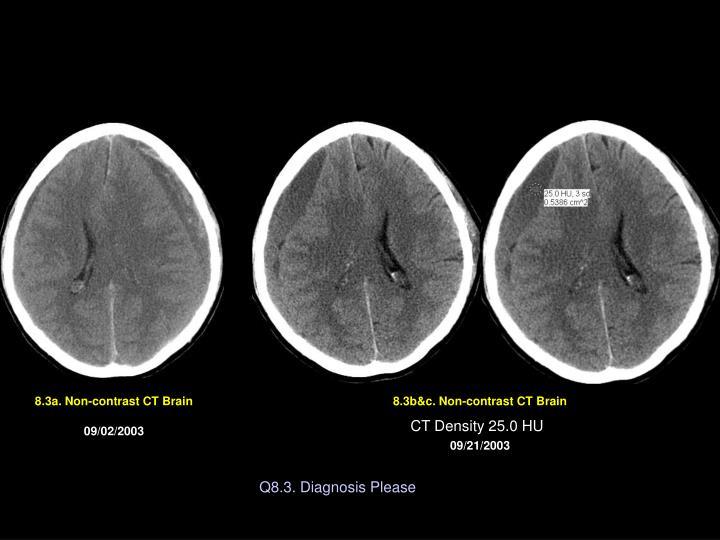 8.3a. Non-contrast CT Brain