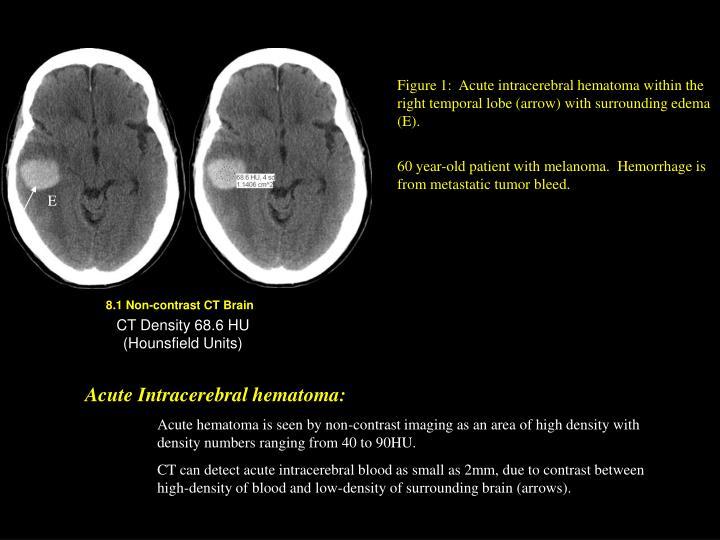 Figure 1:  Acute intracerebral hematoma within the right temporal lobe (arrow) with surrounding edema (E).