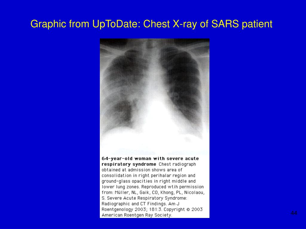 Graphic from UpToDate: Chest X-ray of SARS patient