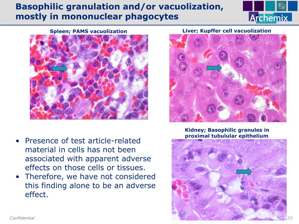 Basophilic granulation and/or vacuolization,