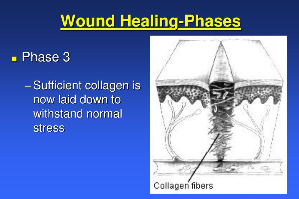 Wound Healing-Phases