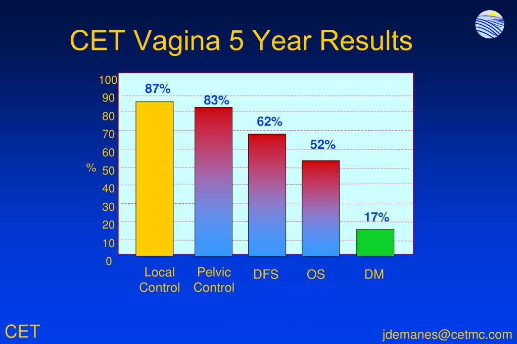 CET Vagina 5 Year Results