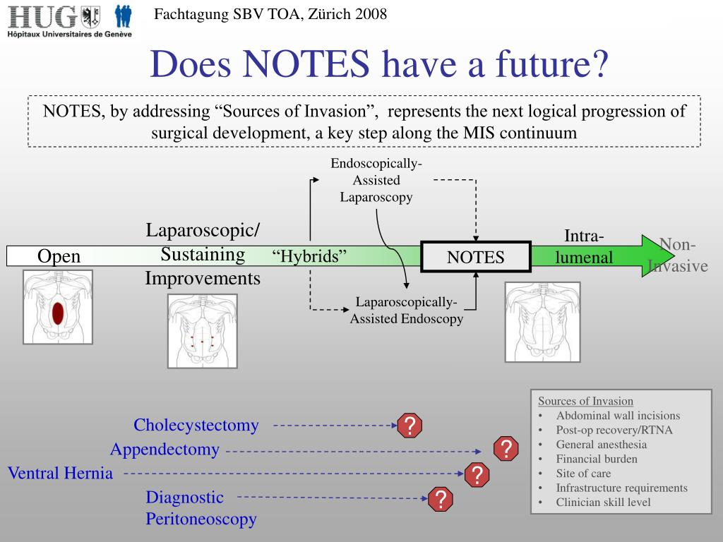 Does NOTES have a future?